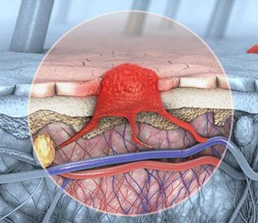 Cirugía de Piel y Melanoma